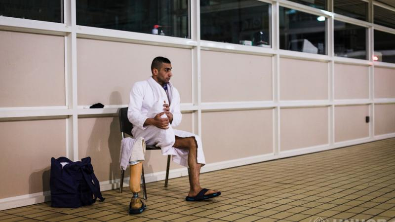 Man with amputated leg sitting close to swimming pool